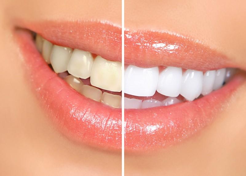 Teeth Whitening  Madison, WI